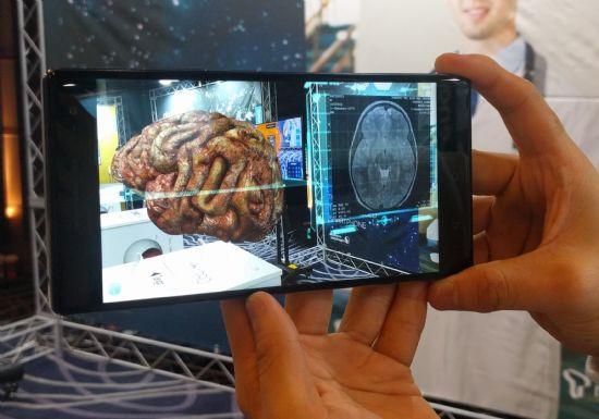 레노버 팹2 프로로 환자의 뇌 이미지를 3차원으로 불러낸 모습 (사진=지디넷코리아)