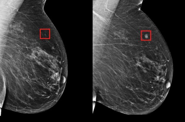 AI기술로 유방암 조기진단 정확도 확 높였다
